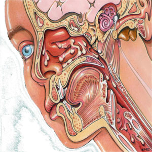 bệnh về tai mũi họng
