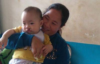 chương trình tìm lại nụ cười 2017 cho trẻ em sức môi hở hàm ếch