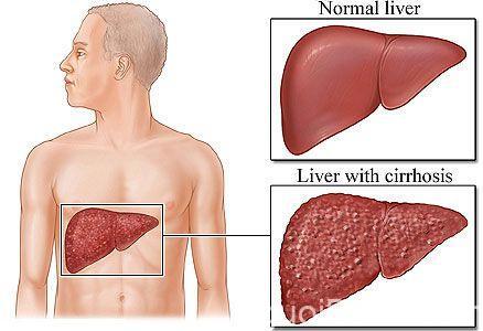bệnh nóng gan