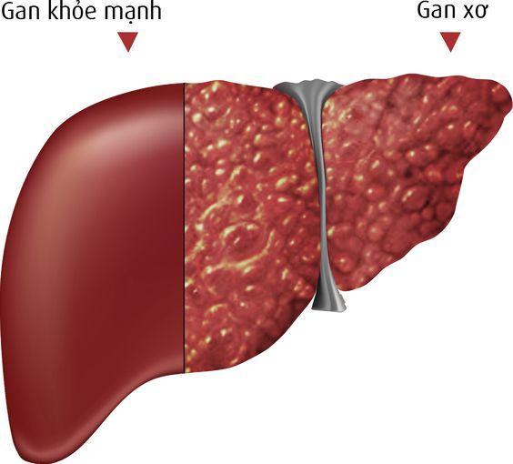 bệnh u gan