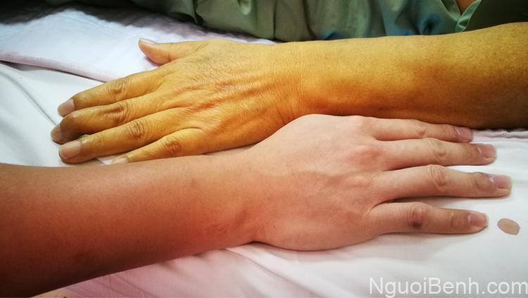 Vàng da là một trong những triệu chứng của bệnh suy gan