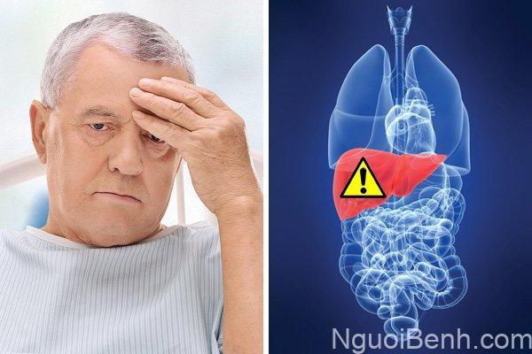 bệnh viêm gan b có nguy hiểm không