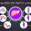 Nguyên nhân và cách phòng tránh gan nhiễm mỡ